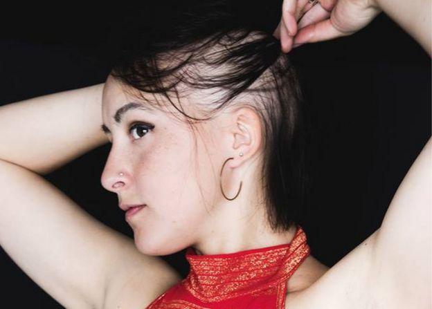 Josie Sinnadurai showing hair loss