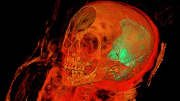 Imagem mostra o crânio da múmia