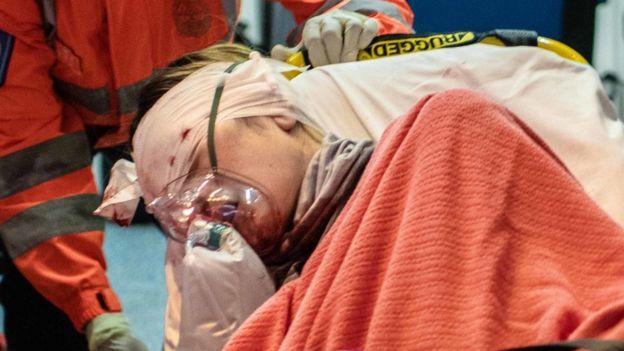 在尖沙咀,一名女示威者眼部受伤。