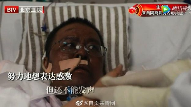 Dr Hu Weifeng after his skin changed colour