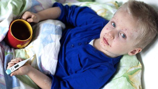 Výsledek obrázku pro ill child