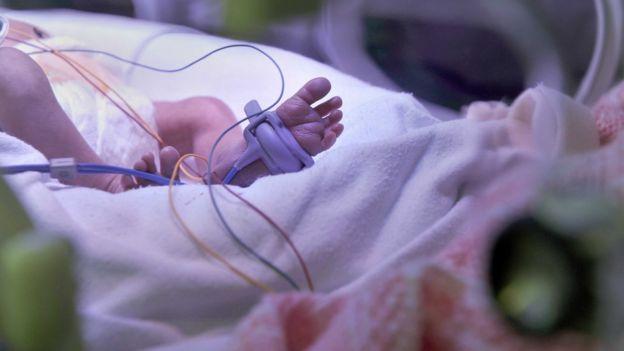 Unidade neonatal