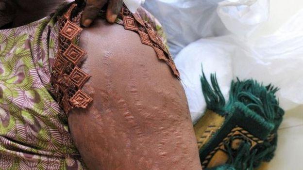 Una mujer muestra las cicatrices en sus brazos en un hospital de Dakar, causadas por tratar de blanquearse la piel