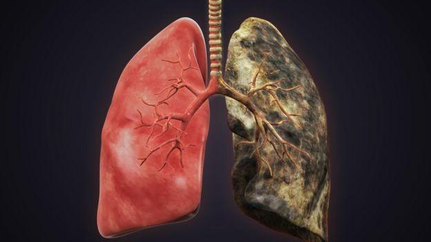 Imagen de un pulmón sano y uno de un fumador.