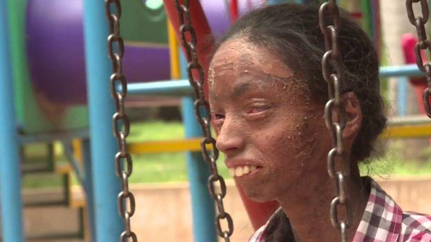 Ictiosis laminar, una enfermedad genética que afecta la piel.