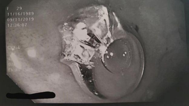أشعة توضح الخاتم في المعدة