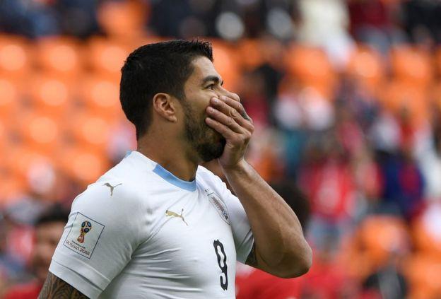 La imagen que refleja el día que ha tenido Suárez frente a Egipto.