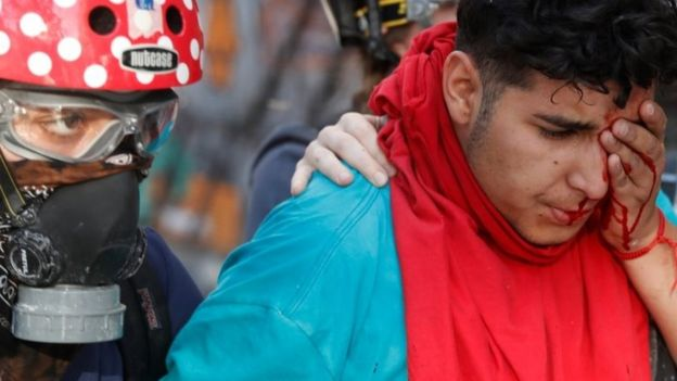 An injured protester walks during a protest against Chile's government in Santiago, Chile, November 15, 2019.