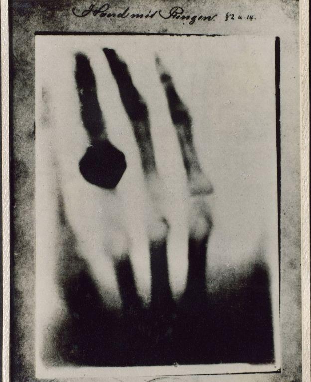 la radiografía de una mano, tomada por Roentgen