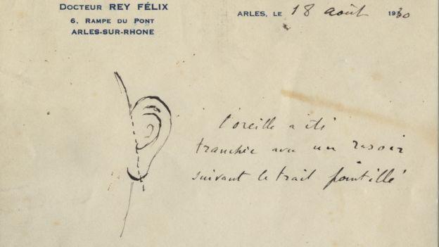 Image result for van gogh ear