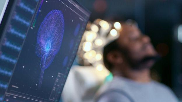 Escáner cerebral en hombre.