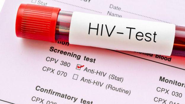 Una muestra de sangre para realizarse un test de VIH.