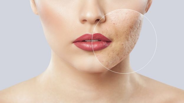 La fricción de la mascarilla acentúa los brotes de acné.