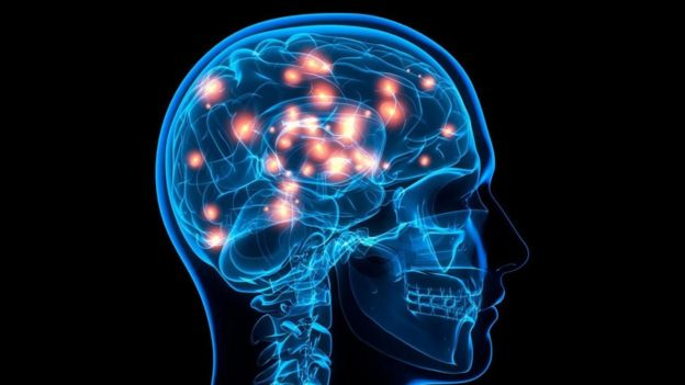 Una imagen de un cráneo