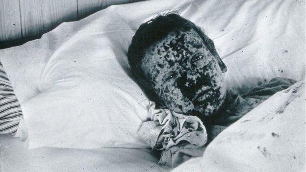 أحد ضحايا مقاطعة لقاح الجدري في غلوستر عام 1896. وتعافى من المرض، لكن غيره ماتوا