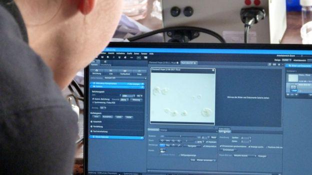 Yumurta ekran görüntüsü