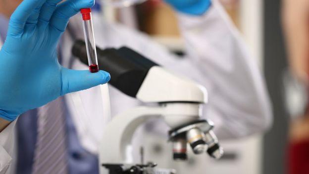 La mano con guantes azules de un hombre sostiene una probeta con sangre cerca de un microscopio
