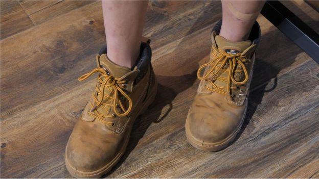 她的鞋可以防滑防油也防貨物砸傷腳,她的腿上一直有傷口。