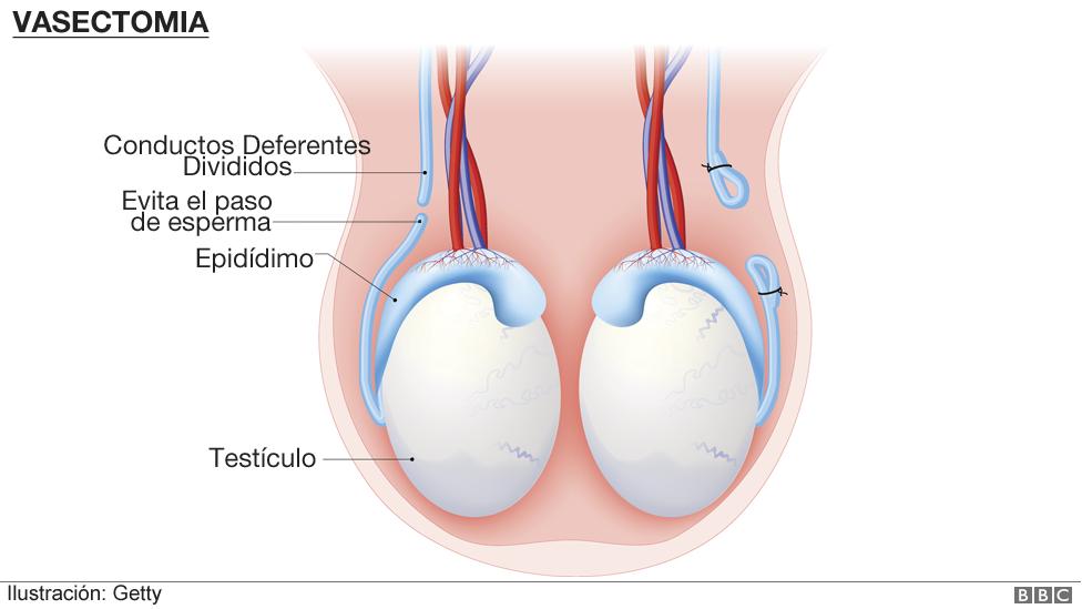 Ilustración de una vasectomía