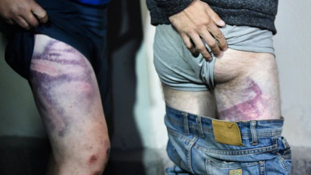 People show their traces of beatings