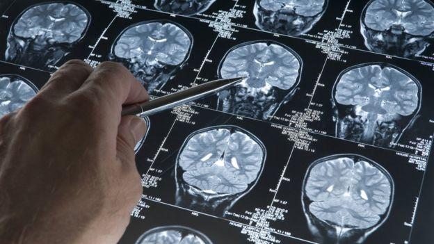 Escáneres cerebrales.