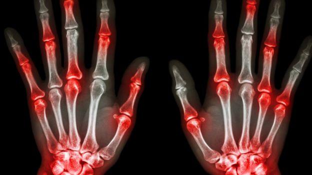 articulações das mãos