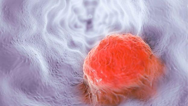 Ilustração artística de câncer de esôfago
