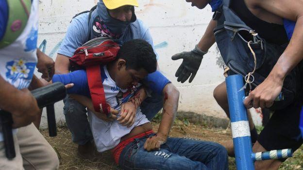 Joven herido en Nicaragua