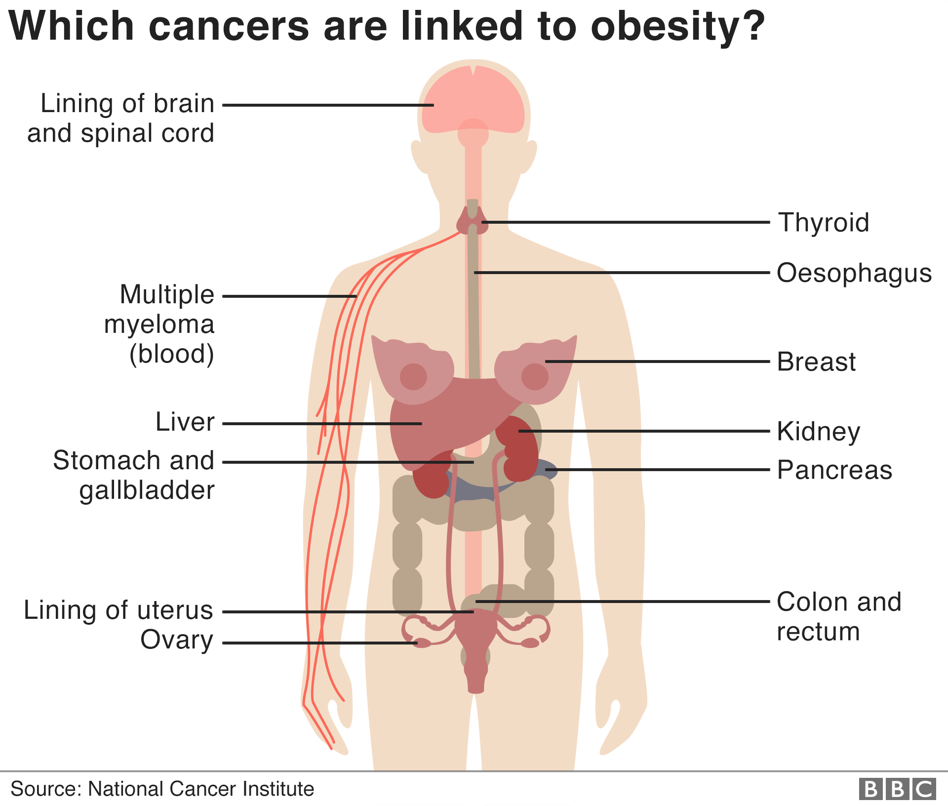 Obesity-related cancers rise for younger US generations