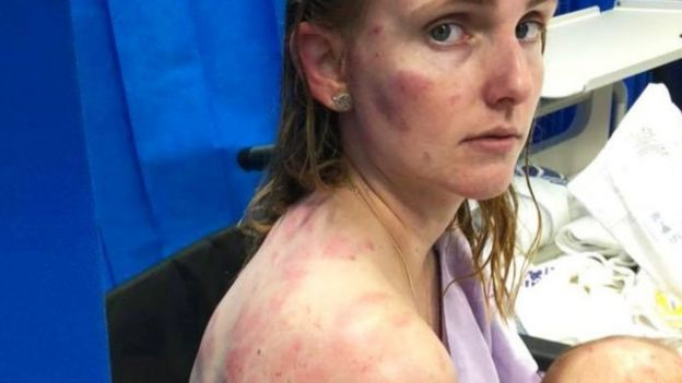Fiona Simpson is seen with bruises and cuts on her face and body