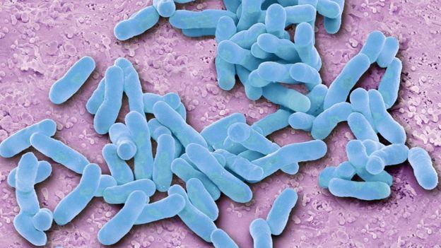 E. coli (Photo: Science Photo Library)
