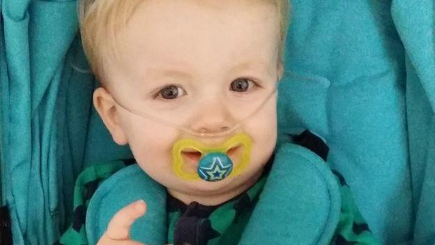 Resultado de imagen para Cómo es la vida de un niño con SWAN, el misterioso síndrome sin nombre