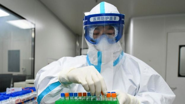 A medical worker samples for nucleic acid test at Weishi Medical Laboratory o­n March 4, 2020