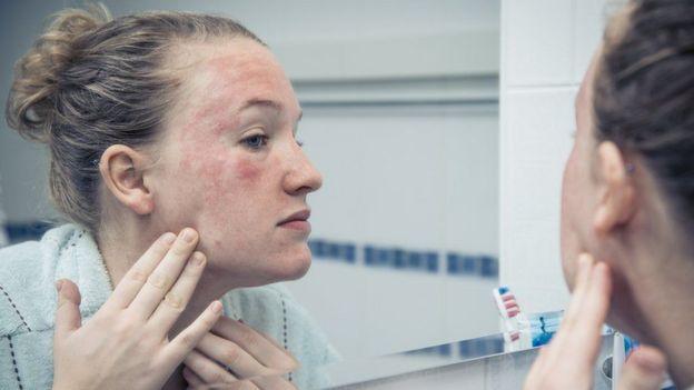 Mujer con erupción en la piel en el espejo.