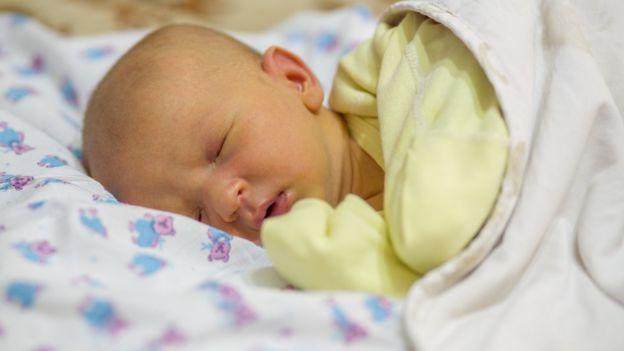 Bebé con ictericia