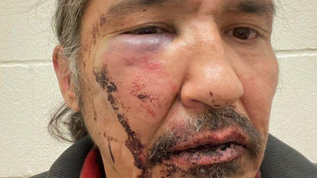 Allan Adam con heridas y hematomas en el rostro.