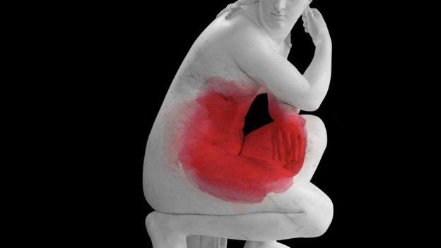 المرض المؤلم الذي يصيب السيدات وليس له علاج