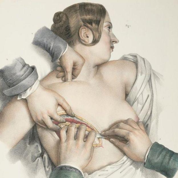 Una ilustración que muestra un procedimiento de mastectomía, circa 1900.