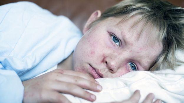 Niño con sarampión.