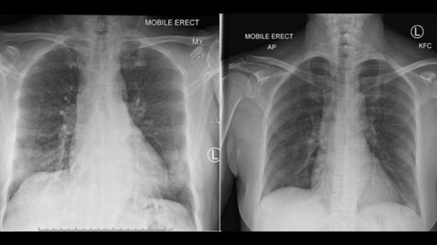 Chest scans which showed the patient's lungs on Day 5 (left) had cleared by Day 10 (2)