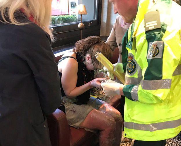 Una mujer con quemaduras atendida por los equipos de emergencia