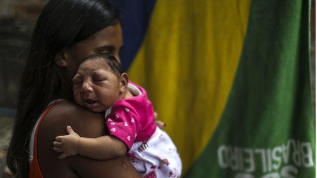 Mãe segura bebê com microcefalia