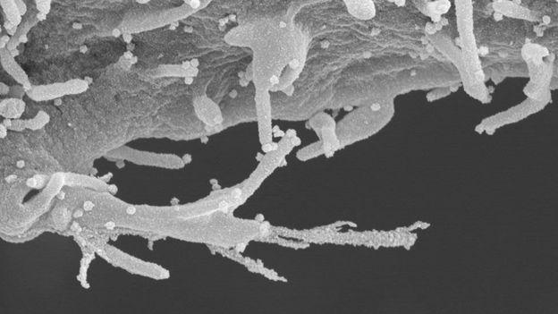 Nunca antes se había visto a la célula humana infectada por el coronavirus con este nivel de detalle.