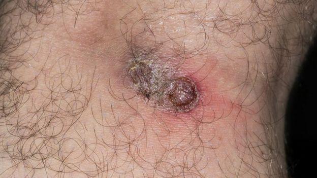 Lesão causada pela leishmaniose