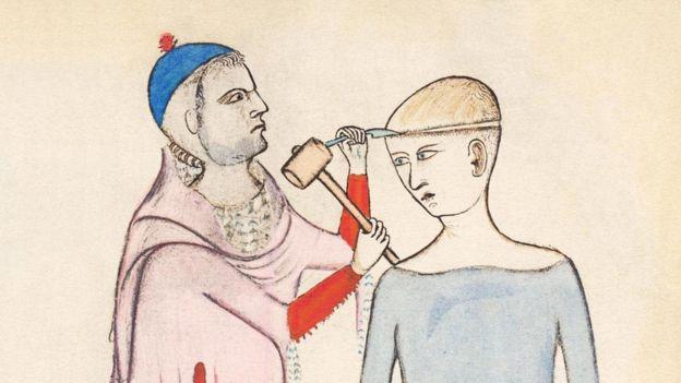 نقاشیای از قرن چهارده از سوراخ کردن جمجمه توسط گویدو داویجوانو