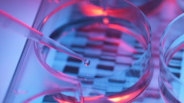 유전자 감식을 위해 샘플을 피페팅 하고있다.
