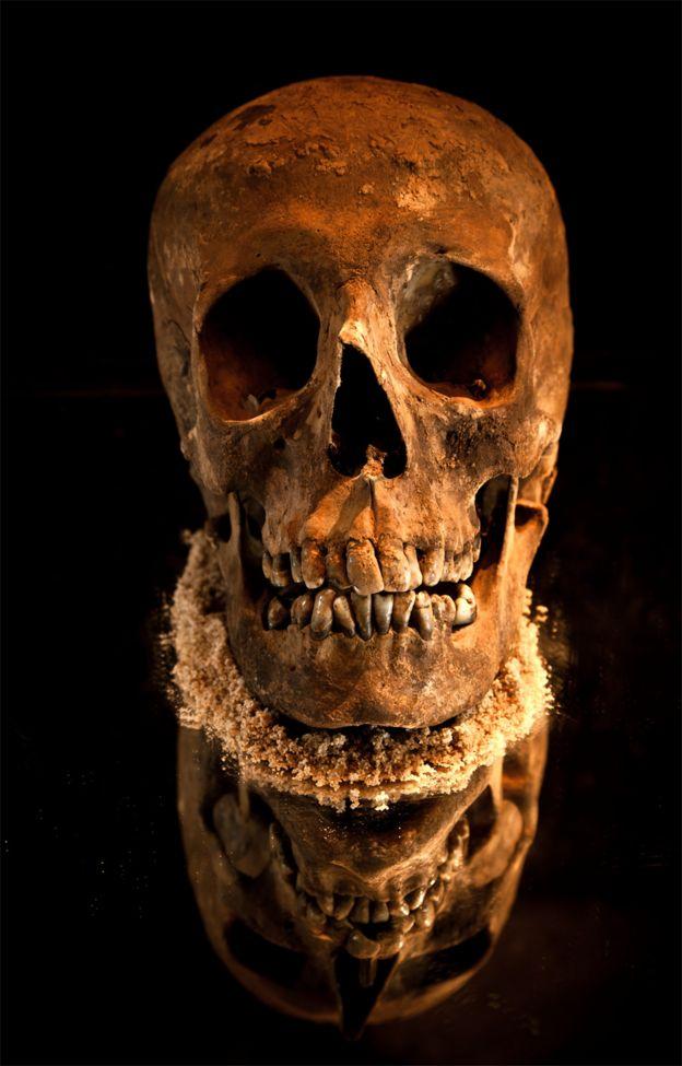 Crânio de D. Pedro 1º