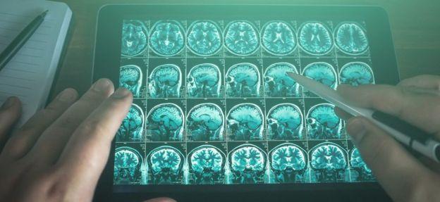 Scanner de un cerebro.