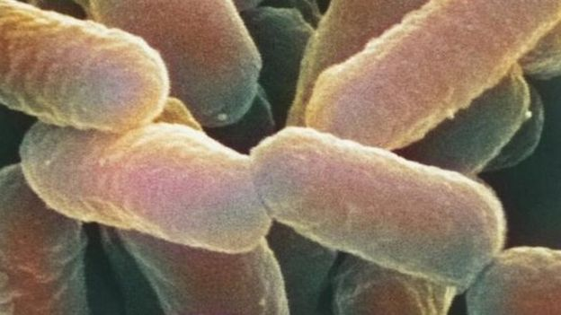 Coloured scanning electron micrograph (SEM) of Escherichia coli 0157:H7