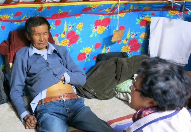 Timurbat, paciente de Mongolia con cáncer de hígado.